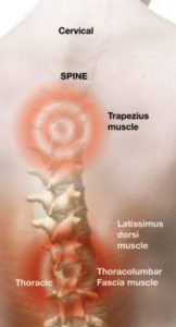 Chronic back-pain-therapy - Copy