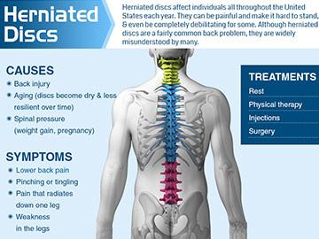 Herniated-Discs chronic back pain